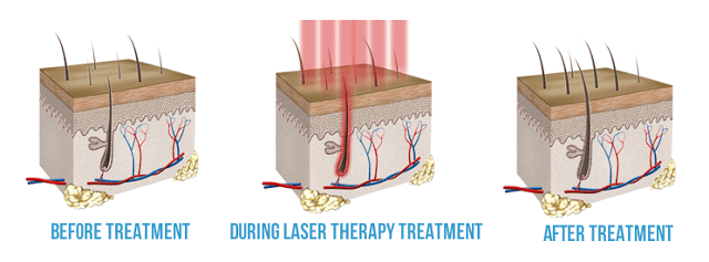 low-level-laser-therapy-for-hair