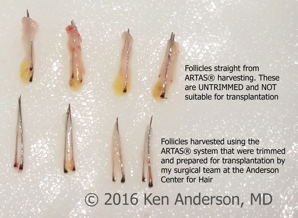 Patient had an ARTAS hair transplant procedure by Dr. Ken Anderson at the Anderson Center for Hair; Hair transplant; hair restoration; hair loss; ARTAS; NeoGraft; stem cells; PRP; ACell; Anderson; hairishot; regrow; ISHRS; balding; atlantahairsurgeon; IAHRS; baldtruthtalk; hair; hairloss; FUE; follicular unit extraction; best