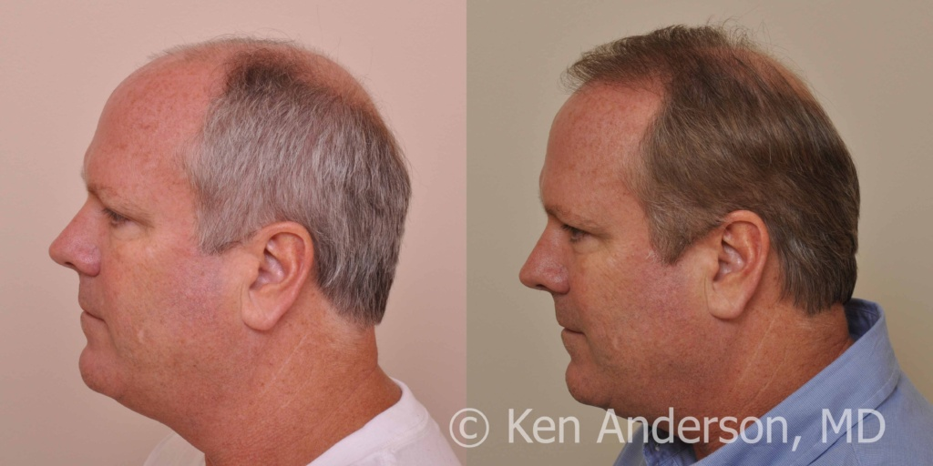 Dr Ken Anderson Norwood 6 2 294 Grafts Fut With Prp And Acell Month Pics Baldtruthtalk