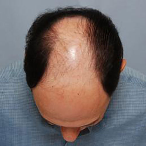 men-hair-loss-pattern