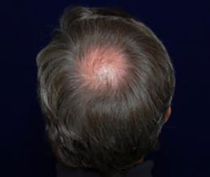 men-hair-loss-back