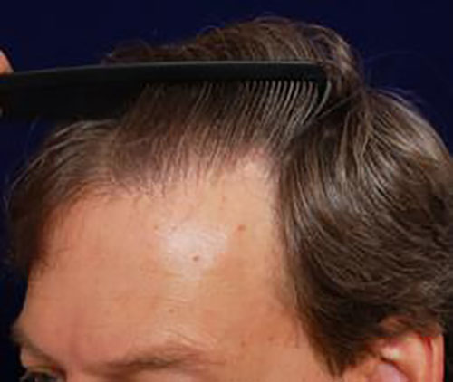men-hair-loss-with-comb