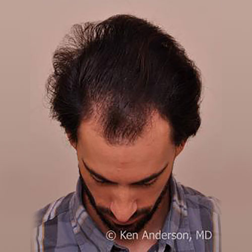 men-hair-loss
