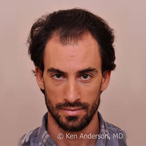 men-hair-loss-before