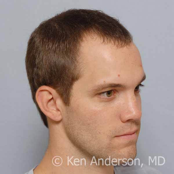 mens-hair-loss